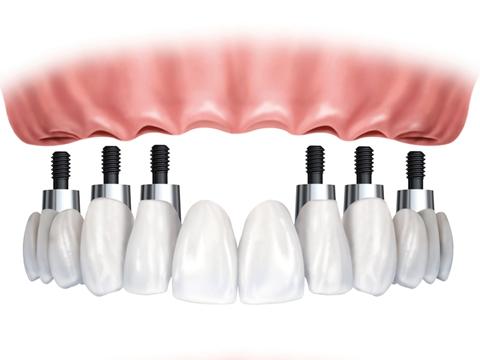 种植牙的效果图