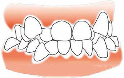 而复杂拥挤则主要是由于颌骨,牙弓发育不良引起的,这种牙齿拥挤治疗