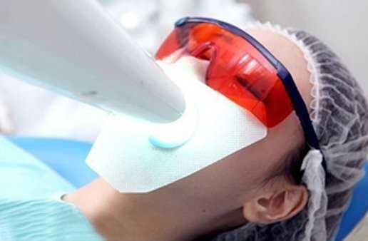 冷光美白_氟斑牙冷光美白治疗效果好吗?